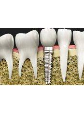 Implant Dentist Consultation - Thind Dental Clinic