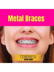 Metal Braces - Thind Dental Clinic