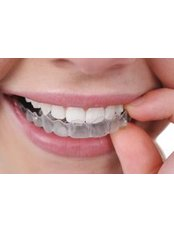 Clear Braces - Thind Dental Clinic