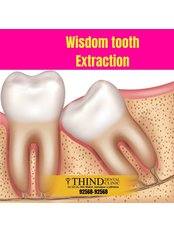 Wisdom Tooth Extraction - Thind Dental Clinic