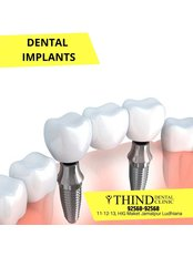 Single Implant - Thind Dental Clinic