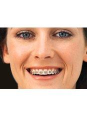 Adult Braces - Salem Dentist - Top Dental Clinic Salem