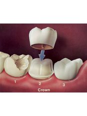 Dental Crowns - Salem Dentist - Top Dental Clinic Salem