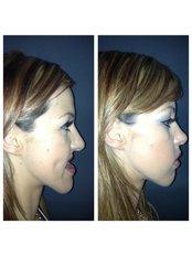 Oral and Maxillofacial Surgeon Consultation - Salem Dentist - Top Dental Clinic Salem