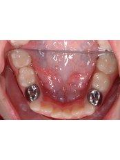 Stainless Steel Crown - Salem Dentist - Top Dental Clinic Salem
