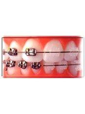 Braces - Salem Dentist - Top Dental Clinic Salem