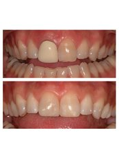 Porcelain Crown - Salem Dentist - Top Dental Clinic Salem