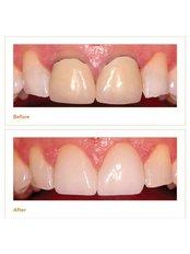 Permanent Crown - Salem Dentist - Top Dental Clinic Salem