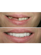 Dental Bridges - Salem Dentist - Top Dental Clinic Salem