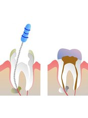 Root canals - Salem Dentist - Top Dental Clinic Salem
