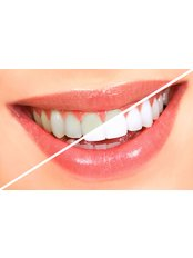 Teeth Whitening - Salem Dentist - Top Dental Clinic Salem