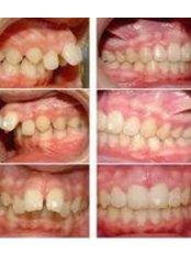 Braces - Beyond Smiles Dental Clinic