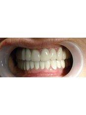 CAD/CAM Dental Restorations - Beyond Smiles Dental Clinic