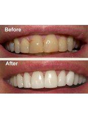 Teeth Whitening - Beyond Smiles Dental Clinic