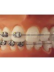 Ceramic Braces - Beyond Smiles Dental Clinic