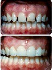 Veneers - Beyond Smiles Dental Clinic