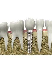 Dental Implants - Dr Preay Mehta's Dental Spa