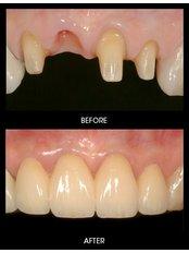 Dental Crowns - Dr Preay Mehta's Dental Spa