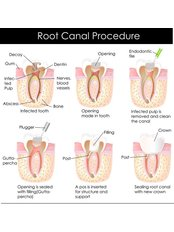 Single Visit Root Canal - Dr Preay Mehta's Dental Spa
