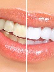 Spark Dental Care - 104, Mahavir Chambers,, Opp Ellora Milk Center, Ellora Park, Vadodara, gujarat, 390023,  0
