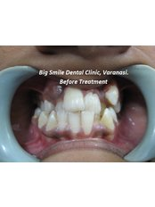 Before treatment - Big Smile Microscopic-Dentistry and Implant Center