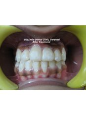 After Treatment - Big Smile Microscopic-Dentistry and Implant Center