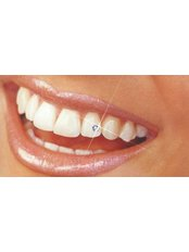 Tooth Jewellery - Jakarta Smile - Family Dental