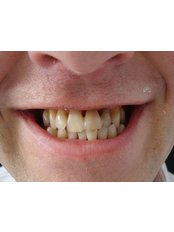 Dental Bridges - The Fresh Breath Clinic- Specialists in Bad Breath Elimination