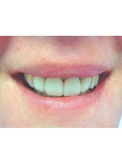 Porcelain Veneers - The Fresh Breath Clinic- Specialists in Bad Breath Elimination