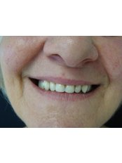 Dentures - The Fresh Breath Clinic- Specialists in Bad Breath Elimination