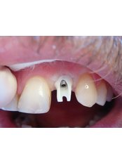 Single Implant - The Fresh Breath Clinic- Specialists in Bad Breath Elimination
