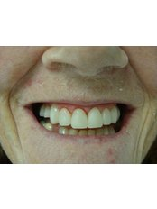Composite Veneers - The Fresh Breath Clinic- Specialists in Bad Breath Elimination