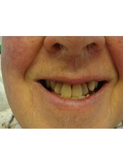 Immediate Dentures - The Fresh Breath Clinic- Specialists in Bad Breath Elimination