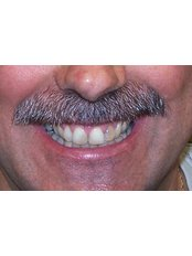 Cosmetic Dentist Consultation - The Fresh Breath Clinic- Specialists in Bad Breath Elimination
