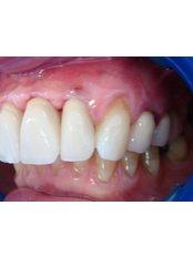 Implant Bridge - The Fresh Breath Clinic- Specialists in Bad Breath Elimination