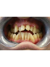 Acrylic Dentures - The Fresh Breath Clinic- Specialists in Bad Breath Elimination