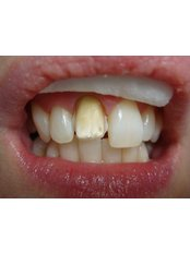 Veneers - The Fresh Breath Clinic- Specialists in Bad Breath Elimination