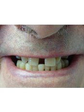 Fillings - The Fresh Breath Clinic- Specialists in Bad Breath Elimination