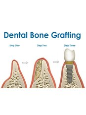 Bone Graft - Dental Artistry