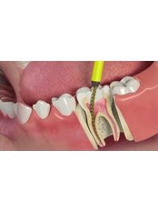 Root Canals - Dental Artistry