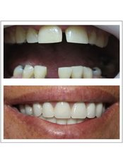 Dental Crowns - Dental Artistry
