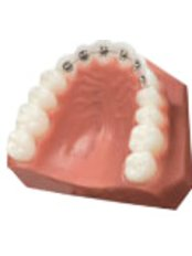Lingual Braces - Dr Hugh Bradley - Donnybrook