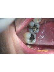 Fillings - Clear Braces/ Dental Options - Clane