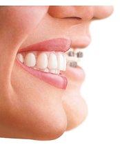 Braces - Clear Braces/ Dental Options - Clane
