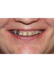 Dental Crowns - Clear Braces/ Dental Options - Clane