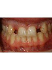 Dental Bridges - Clear Braces/ Dental Options - Clane