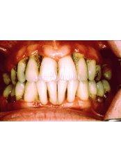 Gingivitis Treatment - Riverforest Dental Clinic