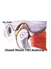 TMJ - Temporomandibular Joint Treatment - Riverforest Dental Clinic