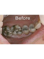 CEREC Dental Restorations - Riverforest Dental Clinic