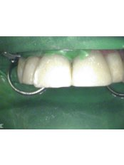 Restorative Dentist Consultation - Riverforest Dental Clinic